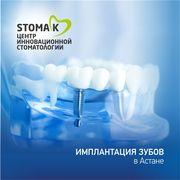 Имплантация зубов в Астане- в инновационной стоматологии Stoma-K!